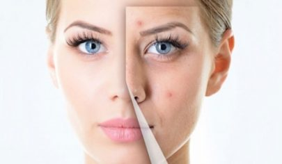treatment-facial-acne