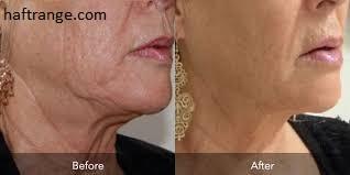 هایفوتراپی صورت ، جوانسازی و لیفت پوست صورت و گردن بدون جراحی