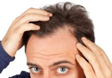 hair loss-haftrange.com1