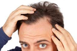 hair loss-haftrange.com1