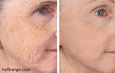 چگونه پوستم را جوان نگه دارم + راهکارهای درمان شلی و افتادگی پوست