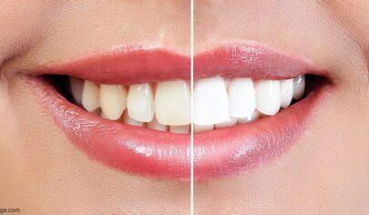 آشنایی با قلم سفید کننده دندان ، بایدها و نبایدها